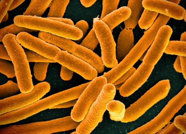 The researchers examined the biological processes of E.coli, a common bacteria. Image credit: NIAID
