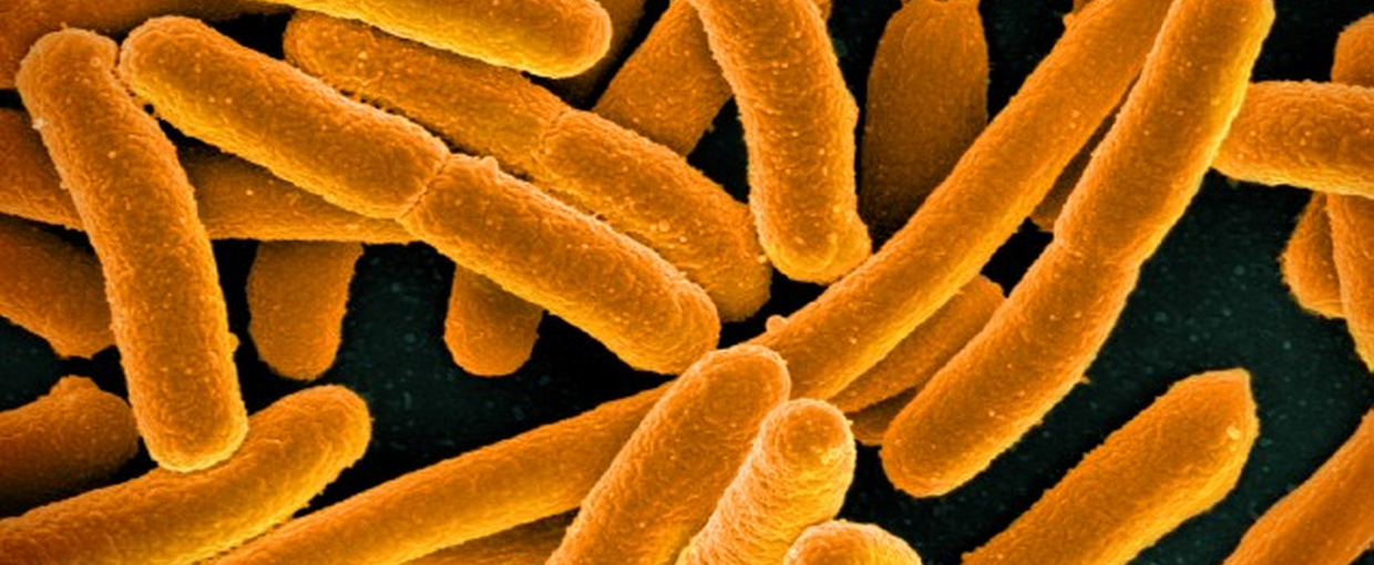 E.coli, a common bacteria. Image credit: None