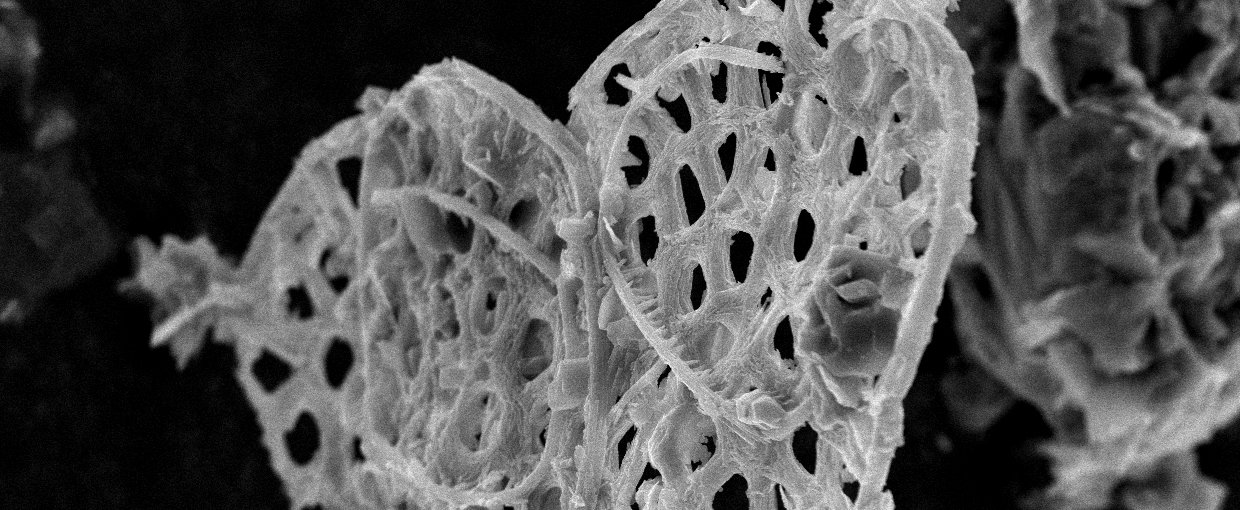 SEM image of a cluster of biomineralized ASM fossils from Mount Slipper. Fossils are found by dissolving carbonate rocks in weak acid. These structures likely acted as armor, with many plates of the same type surrounding a single cell.